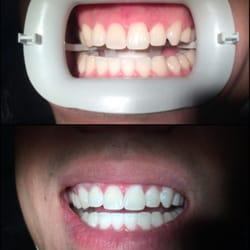 Caredent Dental logo