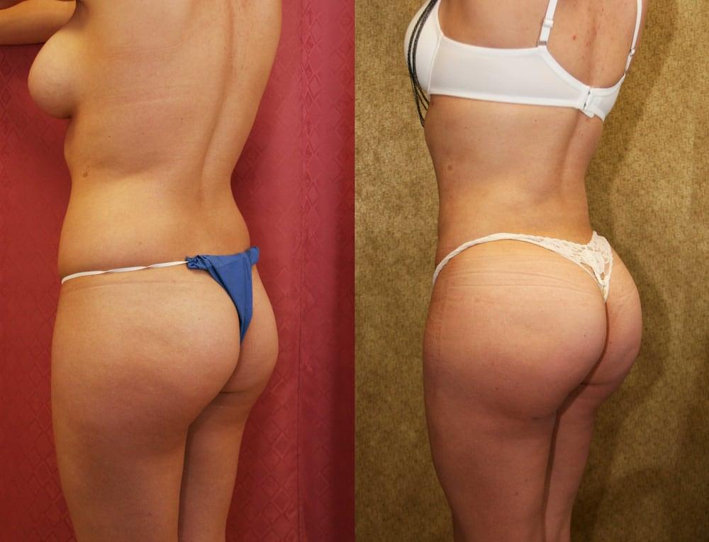 Brazillian Butt Augmentation 69