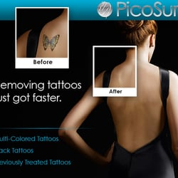Blink tattoo removal 10 fotos tattooentfernung for Picosure tattoo removal michigan