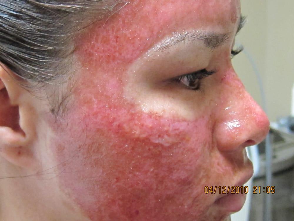 Deep Erbium Laser Peel For Acne Scar Yelp