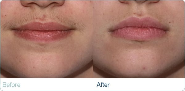 Before And After Upper Lip Yelp