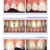 Hart Dental Associates: Botox Treatment