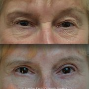 Blepharoplasty/ Eyelid Surgery: Upper,…