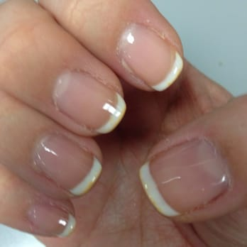Do white gel nails turn yellow