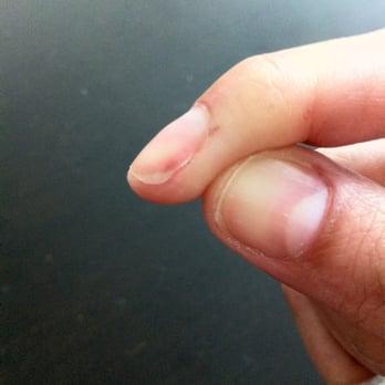 how to break my finger
