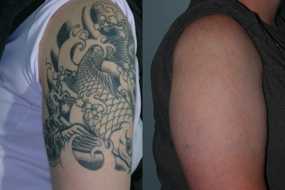 picosure laser tattoo removal near me ~ Best Tattoo Removal