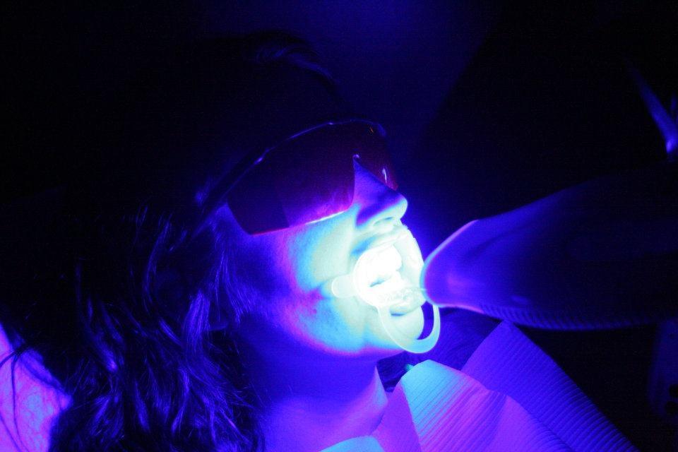 Teeth Whitening Davenport White Guys White Guys Professional Teeth Whitening Davenport