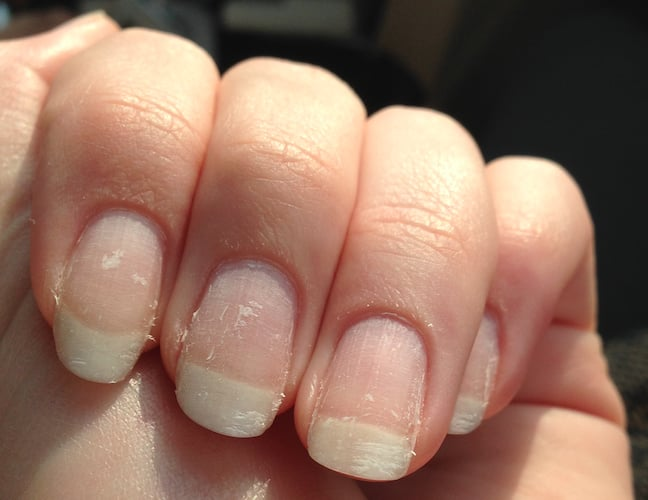 Natural gel nail remover – Great photo blog about manicure 2017