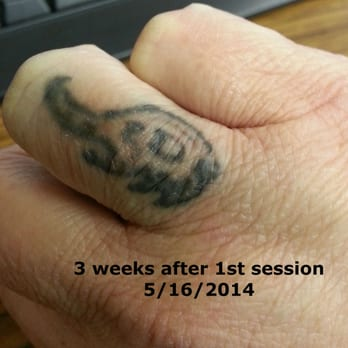 ... 24 hours after my 1st session with Nashville Tattoo and Hair Removal