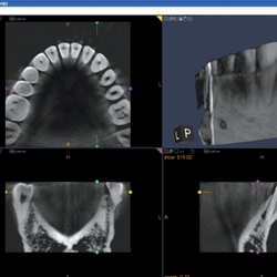 dental vitry selarl de chirurgiens dentistes vitry sur seine val de marne yelp. Black Bedroom Furniture Sets. Home Design Ideas