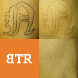 Baltimore tattoo removal tattoo removal lutherville for Tattoo removal maryland