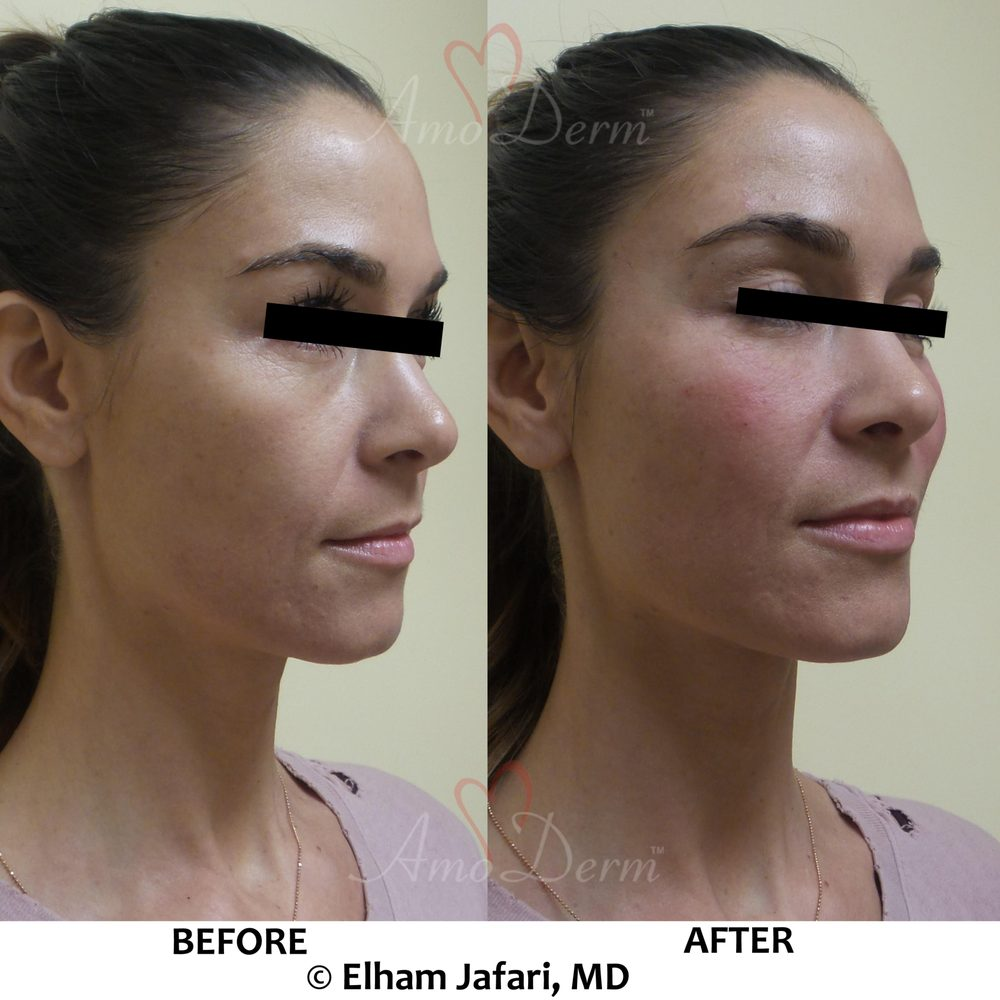 Liquid facelift with filler under eyes for dark circles and