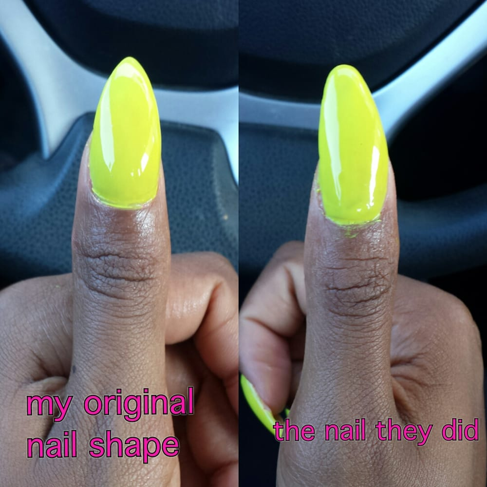 This Picture Shows How My Original Nail Look Vs The Way They Did My