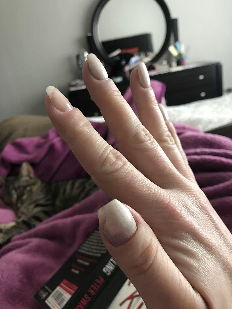 Thumbnail cracked & half broken off, index nail randomly lifted ...
