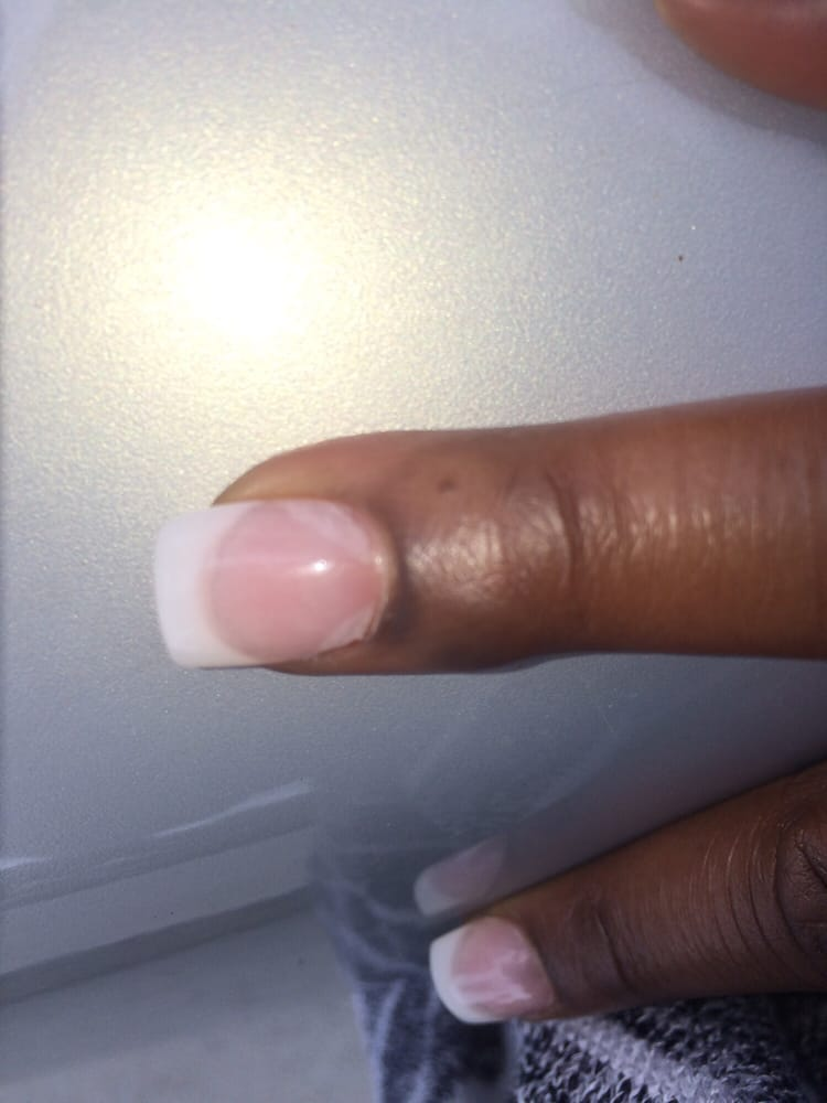 Ty, at lovely nails did this job! This is after One day! - Yelp