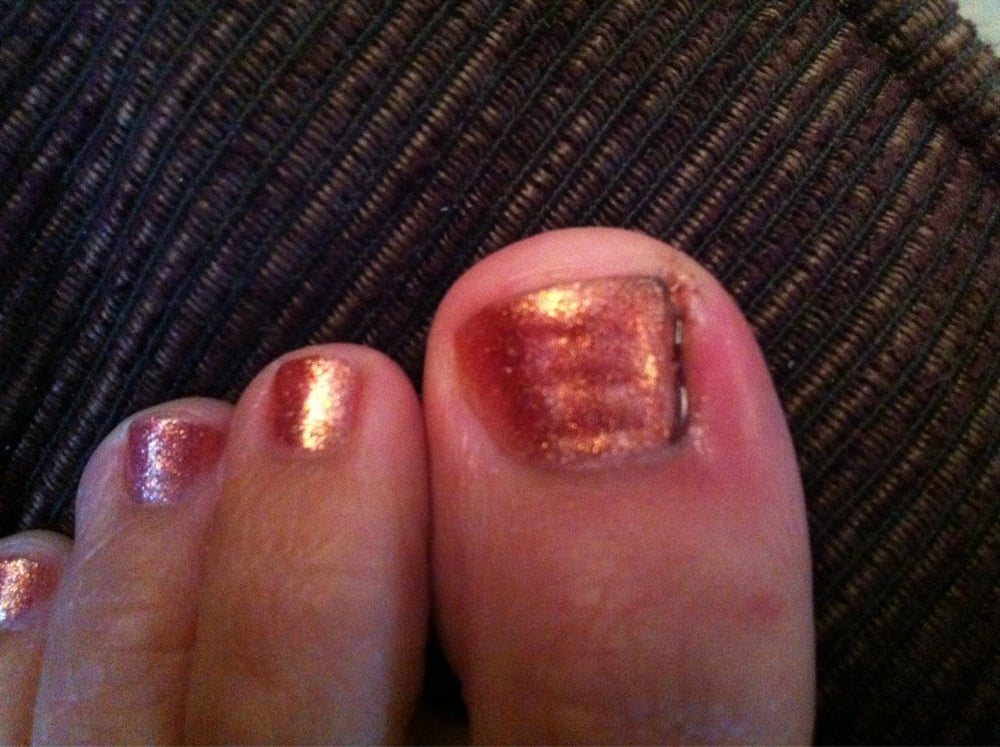 Would you like a bloody toe and infection with your pedicure? - Yelp