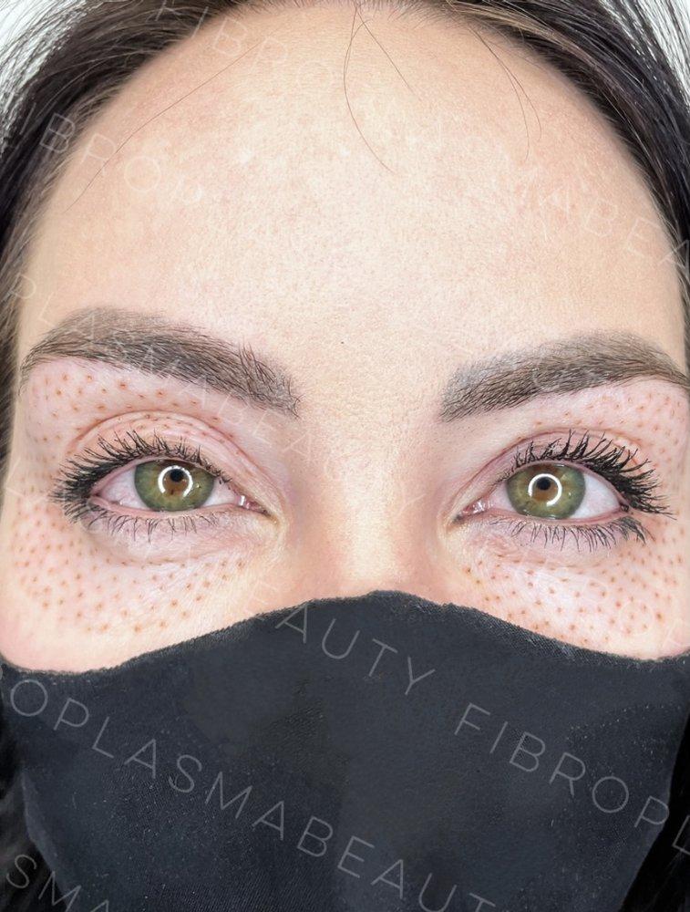 Fibroplasmabeauty: 100 Longbrook Rd, Pleasant hill , CA