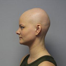 Prirodni šamponi protiv opadanja kose