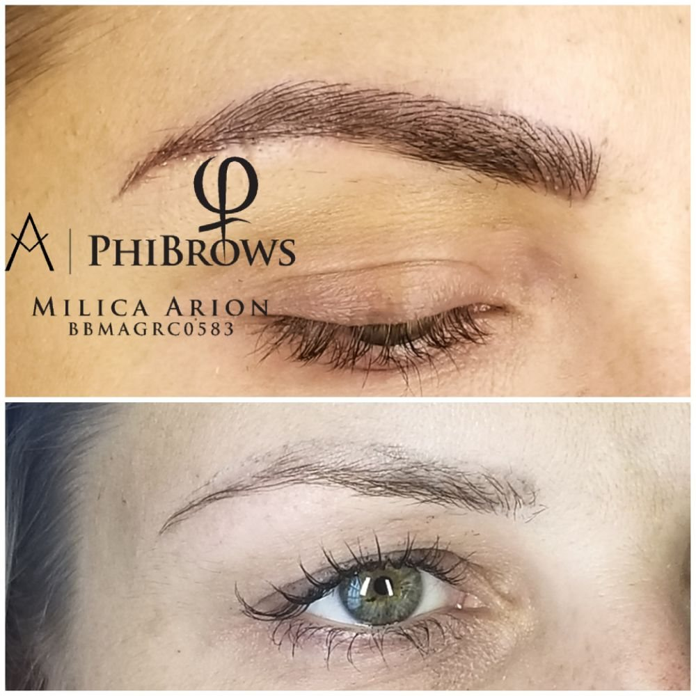 After Eyebrow Tattoo Removal(in previous photos) we did Microblading ...