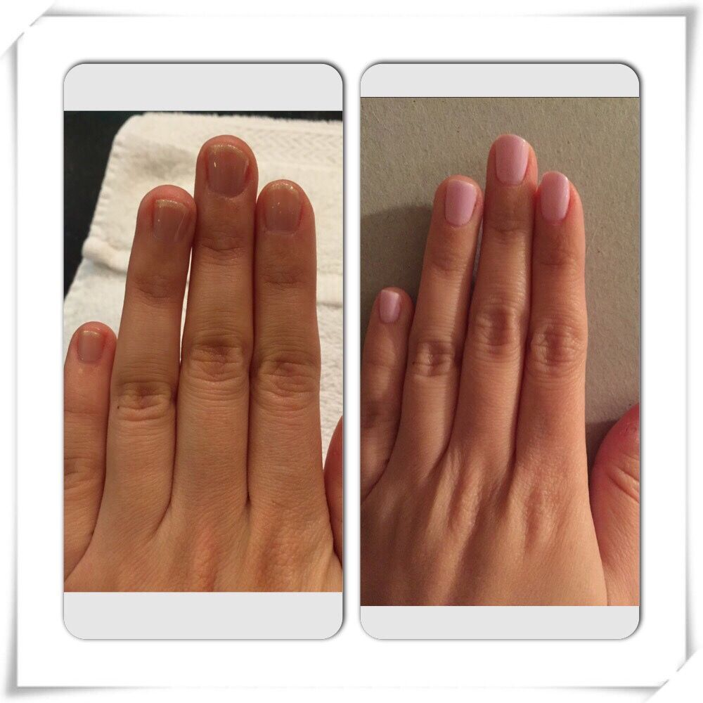 Photo Of Parlor 836 Chicago Il United States Nails Before And After