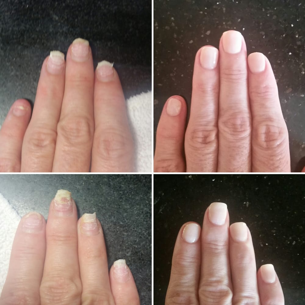Photo Of Sparkling Nails Spa Orange Ca United States Removed My