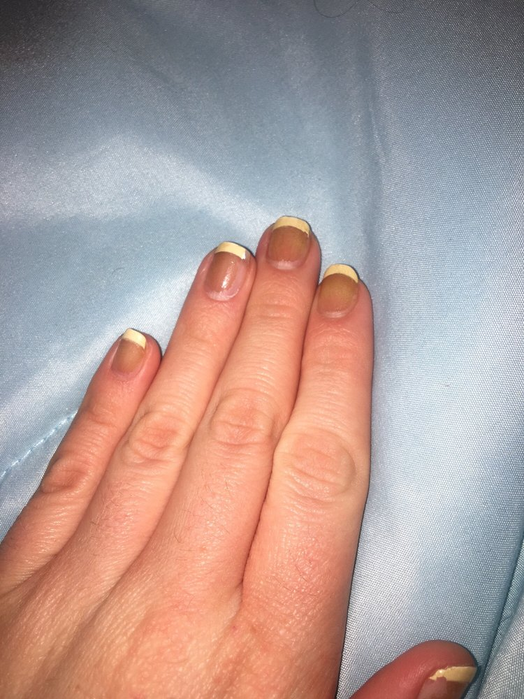 This is the result a few days after my French Manicure. My white ...