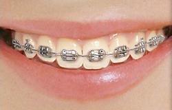 Susquehanna Orthodontics: 510 W Penn St, Selinsgrove, PA