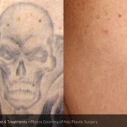 Photo Of Phoenix Tattoo Removal And Skin Revitalization Phoenix Az United States