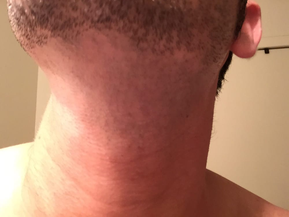 White spots on neck after shaving the day after I had an ...