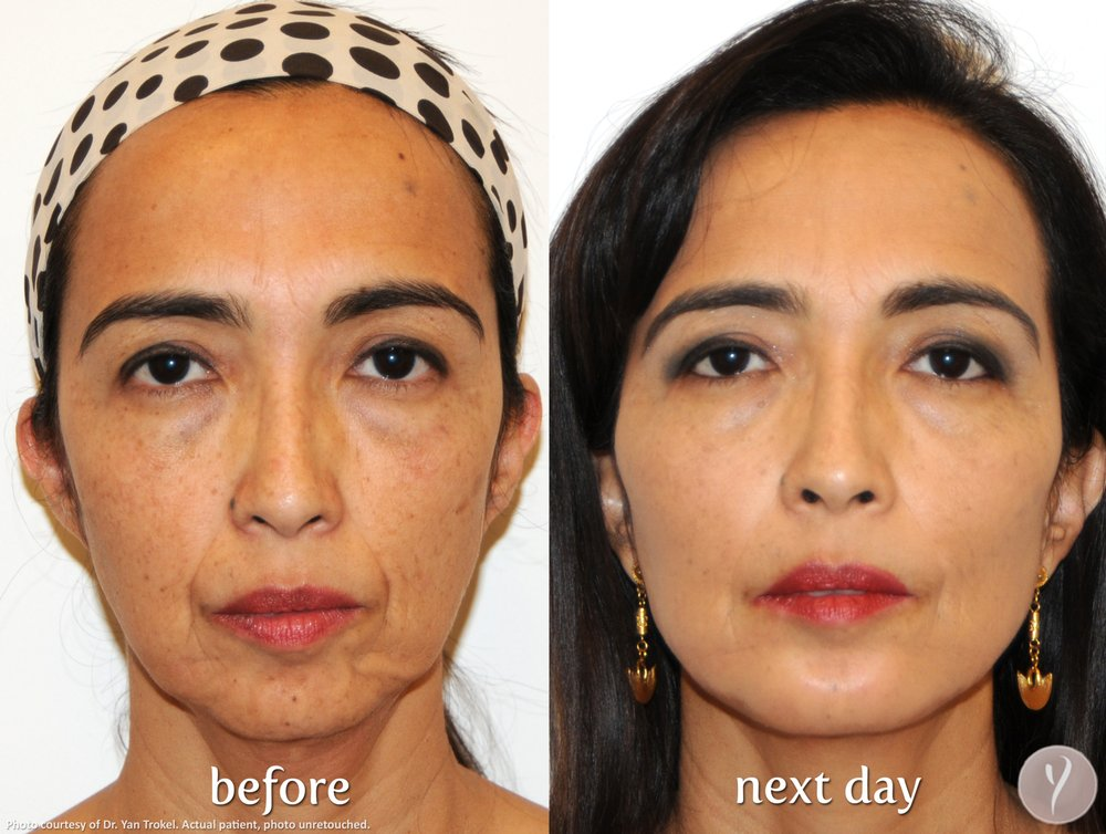 Age 47 Non Surgical Face Lift - Yelp