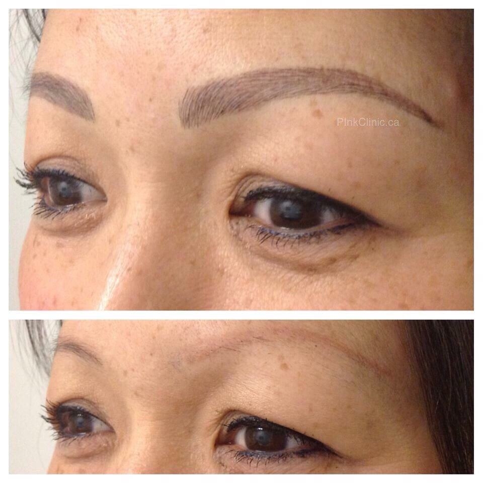 Eyebrow tattoo correction over old tattoo with microblading ...