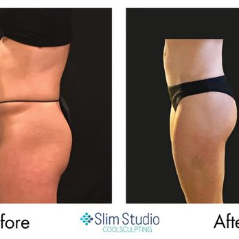 Slim Studio EMSCULPT & CoolSculpting - 4684 Roswell Rd NE
