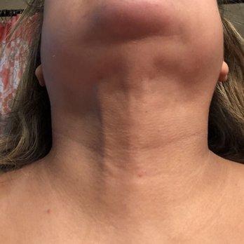 Elite Body Sculpture - Houston - 27 Photos & 19 Reviews