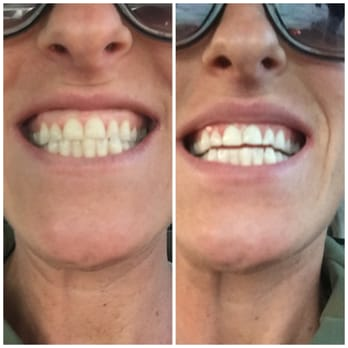 Photo Of Davinci Teeth Whitening Fort Collins Co United States Before And