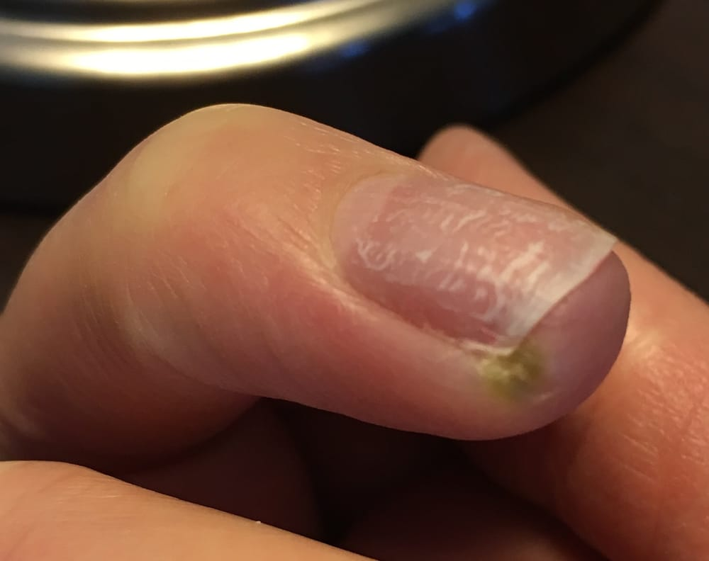 Developed a nail/skin infection three (3) days after having a gel ...