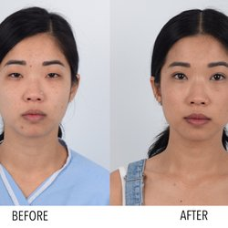 Kenneth Kim, MD - CLOSED - 145 Photos & 158 Reviews - Cosmetic