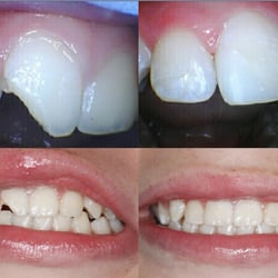 John Acosta, DDS - Pacifica, CA, United States. Before and after photos of our 11 year old patient who chipped his front tooth skateboarding.