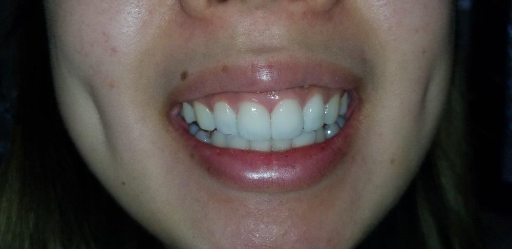 Four Front teeth veneers - Yelp