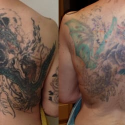 Photo Of Fade Fast Tattoo Removal Dallas Tx United States  Removal