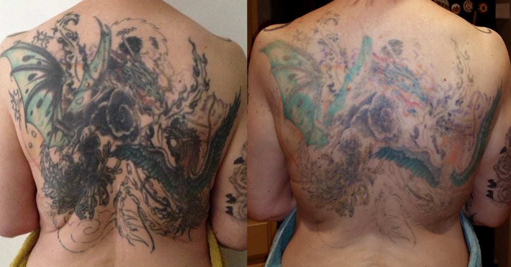 Fade fast tattoo removal 15 reviews tattoo removal for How to fade a tattoo