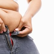 Weight loss history osce picture 7