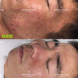Facial medicine stores in 91801 apologise