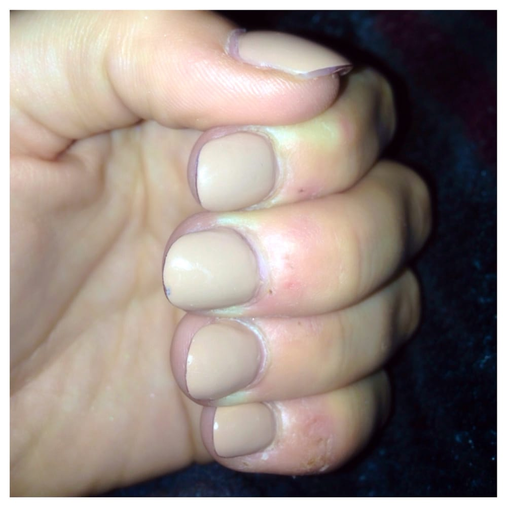Thick nails, unnaturally shapes, and the polish doesn\'t reach the ...