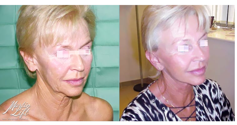 Martin lift thread lift before and after non surgical