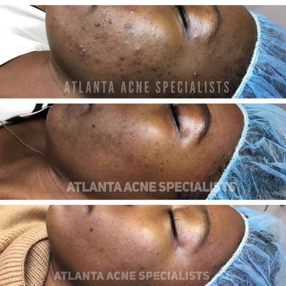 Atlanta Acne Specialists: 465 Winn Way, Decatur, GA