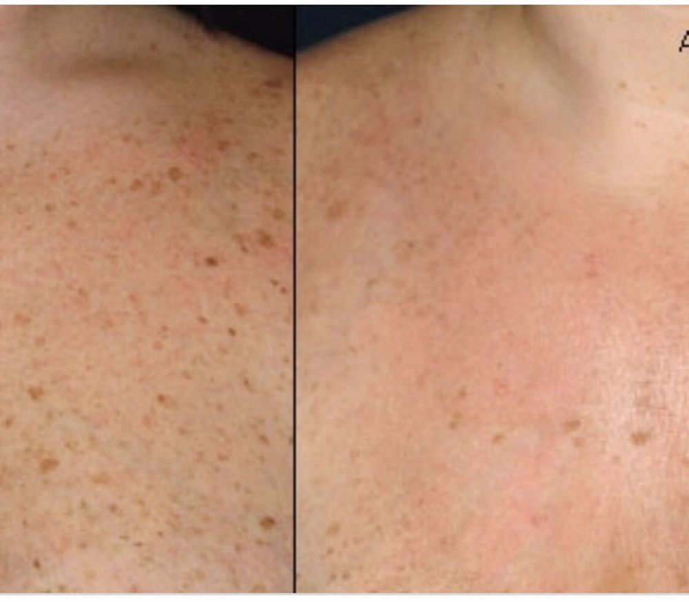 Before and after 1 treatment of IPL