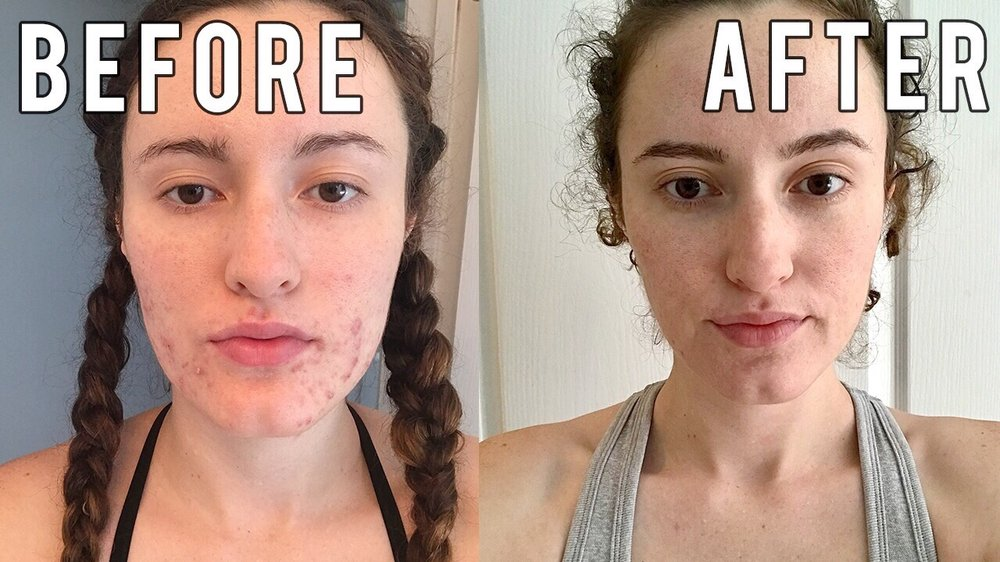 Lincoln Road Dermatology - 50 Reviews - Dermatologists - 1111