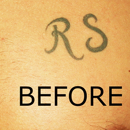 2nd Chance Tattoo Removal - CLOSED - Tattoo Removal - 6362 Figarden ...