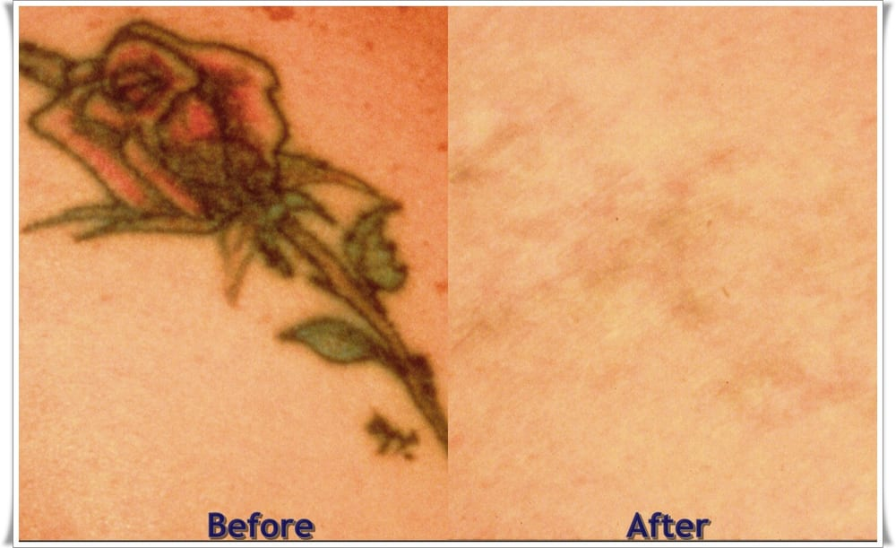 tattoo removal machine, removing a tattoo, how much does tattoo ...