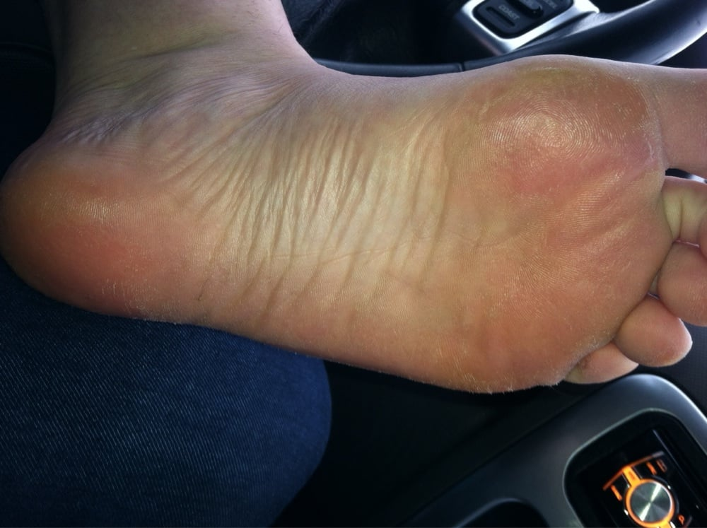 My raw feet after my pedicure here. - Yelp